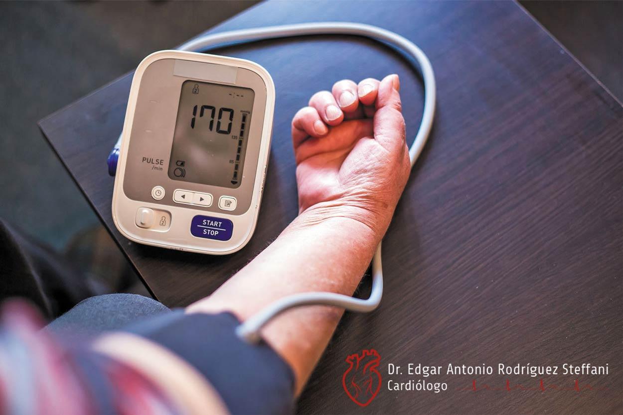 Especialista en Hipertensión en Aguascalientes