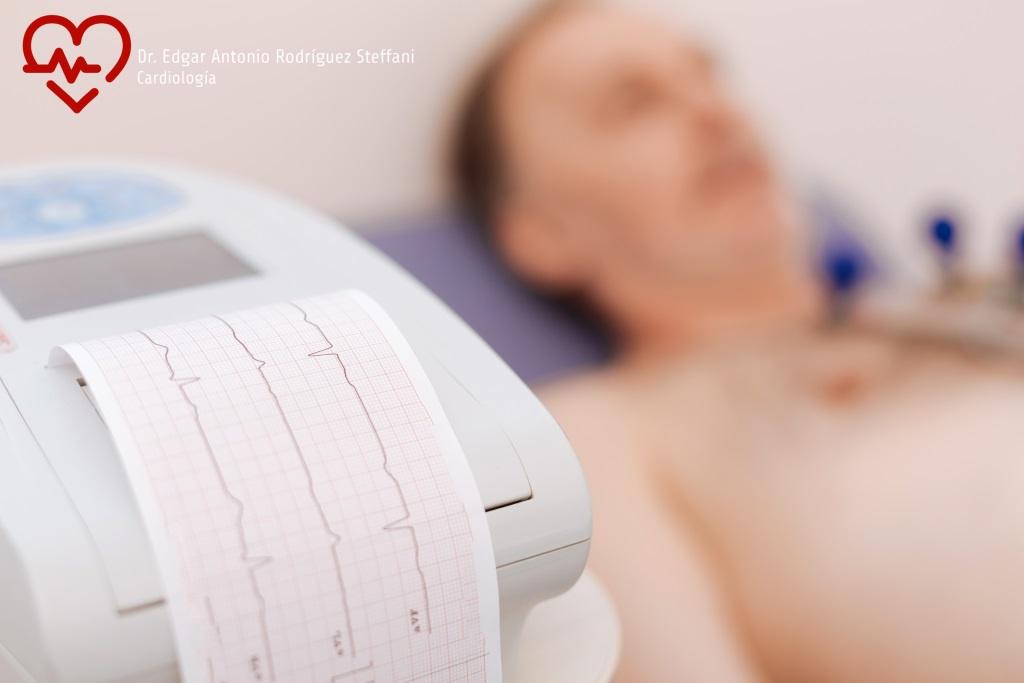 Electrocardiograma en Aguascalientes