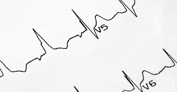 Estudios del Corazón en Aguascalientes